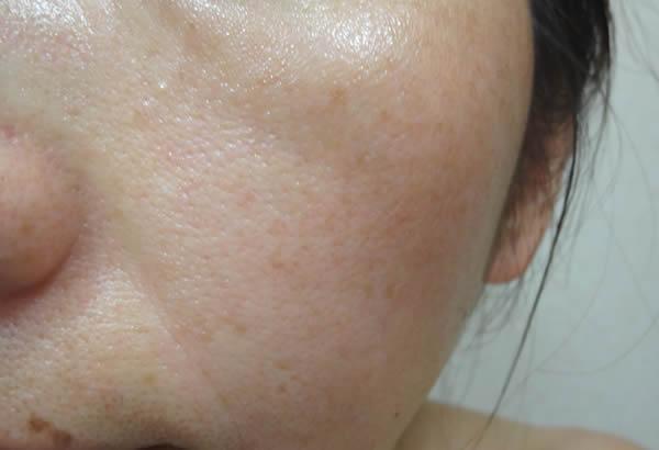 クリスタルコンプ塗布直後の肌